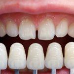 歯並びを美しくしたい
