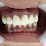 歯ぐきの黒ずみ