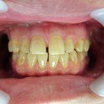 すきっ歯・歯のすき間の治療