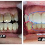 テトラサイクリン歯(変色)と歯並びのお悩み
