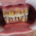 変色歯・テトラサイクリン歯