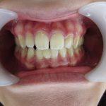 歯のすき間が気になる