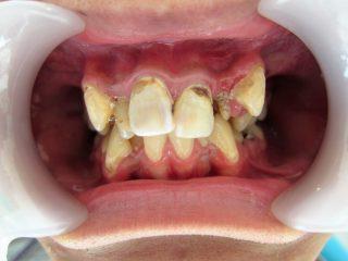 虫歯でボロボロに