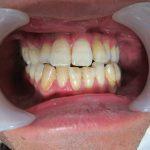 歯の黄ばみ、歯並び