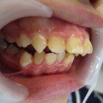 出っ歯のお悩み