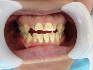 歯並び改善