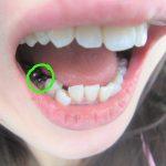 銀歯がとれた(´゚д゚`)