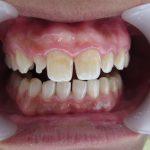 生まれつき歯が小さい