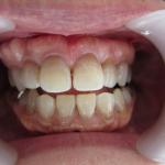 テトラサイクリン歯と部分矯正