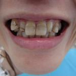 八重歯・プラスチックの変色・歯の色の改善