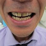 すきっ歯の改善