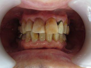 加齢による歯の黄ばみ