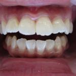 ラミネートベニア処置で美しい白い歯へ