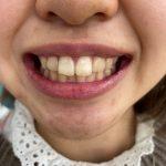 歯の着色の改善【オフィスホワイトニング】