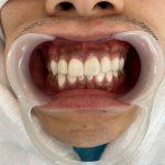 歯ぐきの黒ずみ除去【ピーリング】