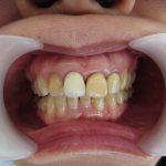 保険の差し歯の変色