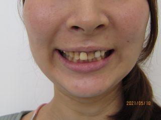 変色した前歯をセラミックへ