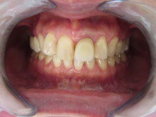 歯と歯の間の変色