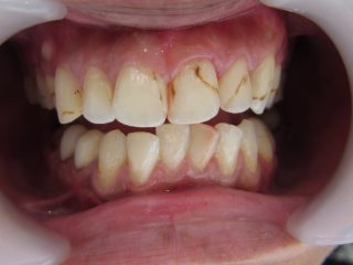 継ぎはぎだらけの歯をラミネートベニアで治療